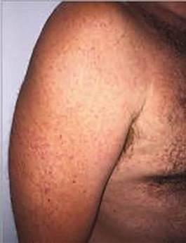 5160511-zika-dermatology-mn-1015_b9a3f90f531a2827ce0062c0a1626f4f-nbcnews-ux-600-700